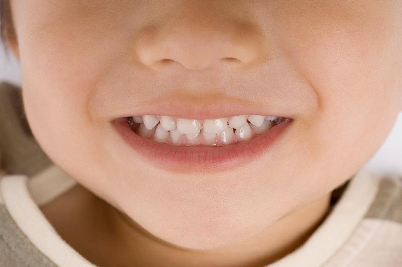 「乳歯は虫歯になっても大丈夫」ではありません
