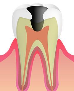 C3(歯髄の虫歯)
