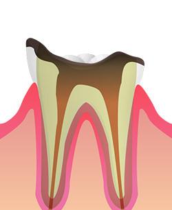 C4(歯根の虫歯)